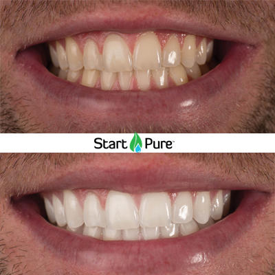 Pure Smile Organic Teeth Whitening The Body Sculpting